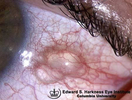 What causes a clear bubble on my eyeball? - Quora