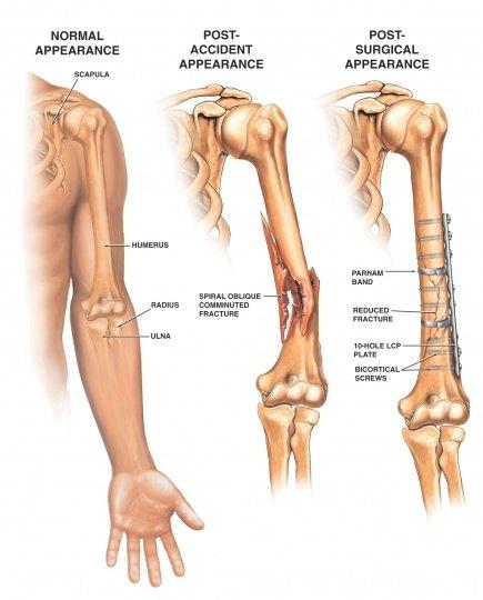 How to avoid humerus injuries - Quora