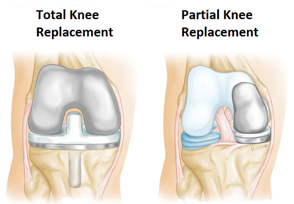 Who Is The Best Knee Replacement Surgeon Of Delhi Quora