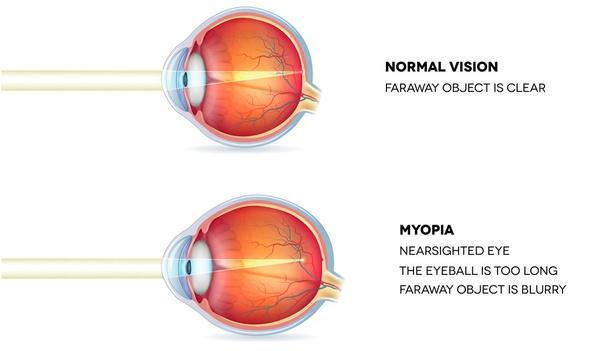 Myopia és asztigmatizmusom van)