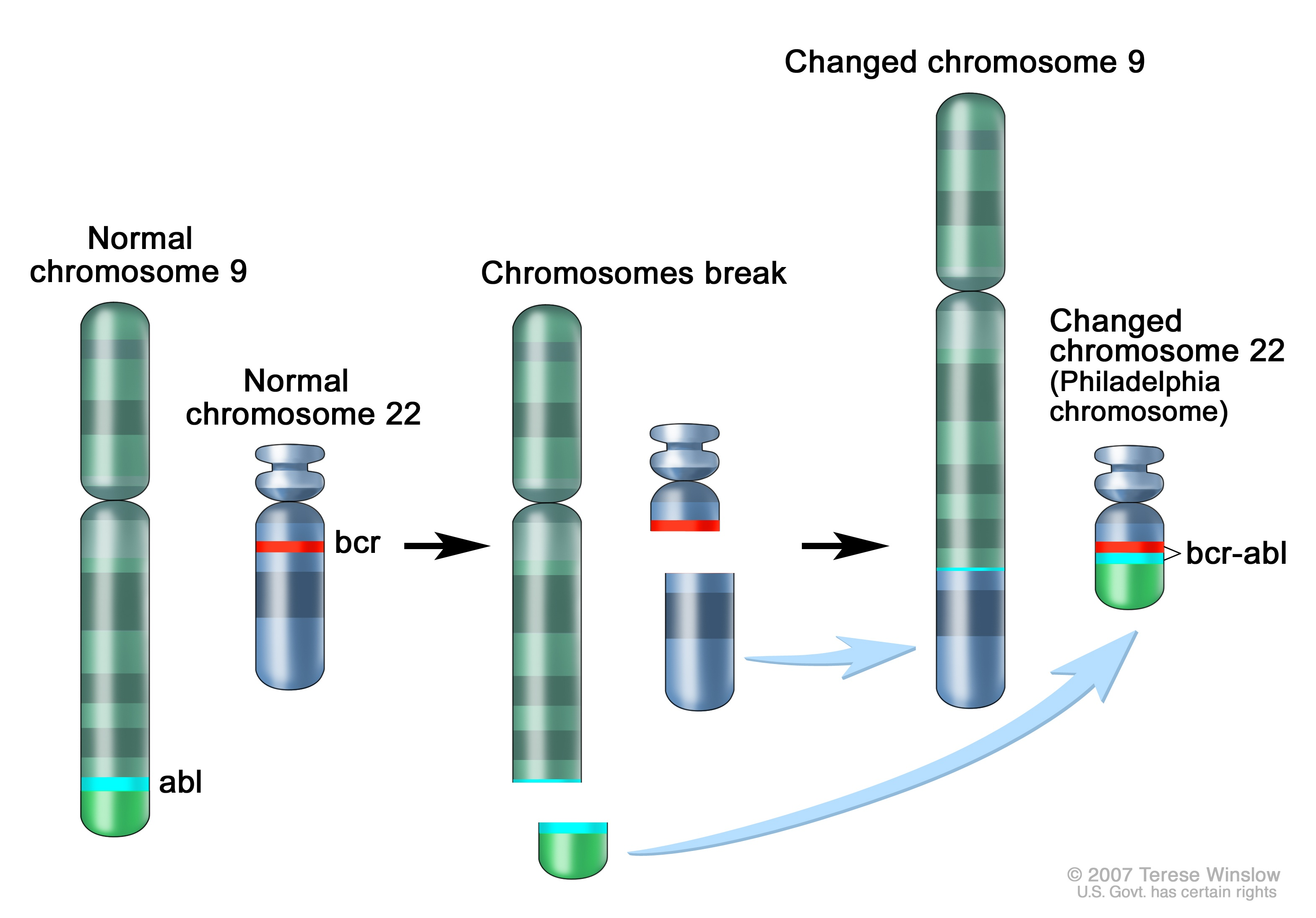 For Example T1221 Is The Most Common Translocation And More Commonly Occurs In Children While T922 Philadelphia Chromosome