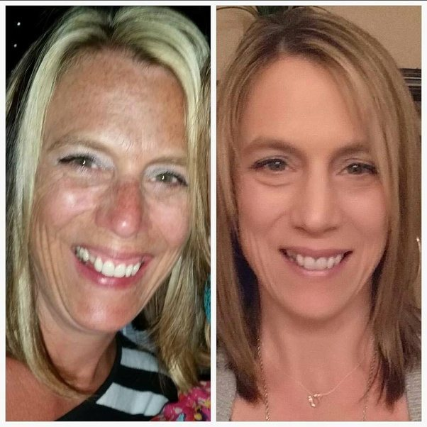 This Before/after Is Of Sun Damage To A Womanu0027s Face On The Left, And The  Pic On The Right Is After Expensive Skin Restoration Treatment.
