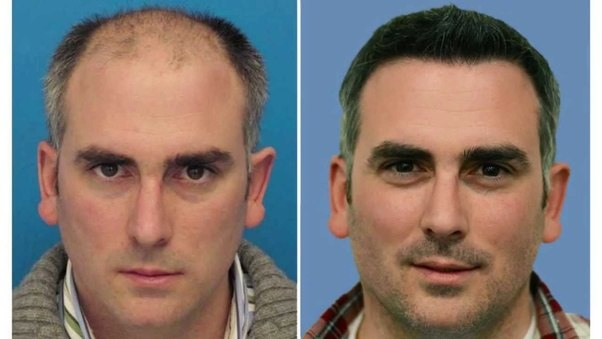 5 Benefits Of Hair Transplant In The Uk