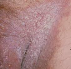 What are the symptoms of tinea cruris? - Quora