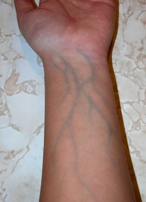 Arms i want my veins in Why Are