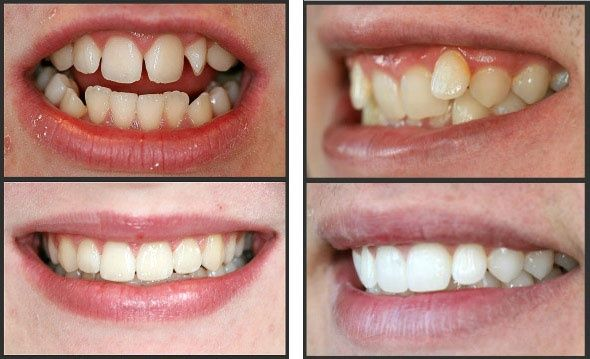 Why should I get braces? - Quora