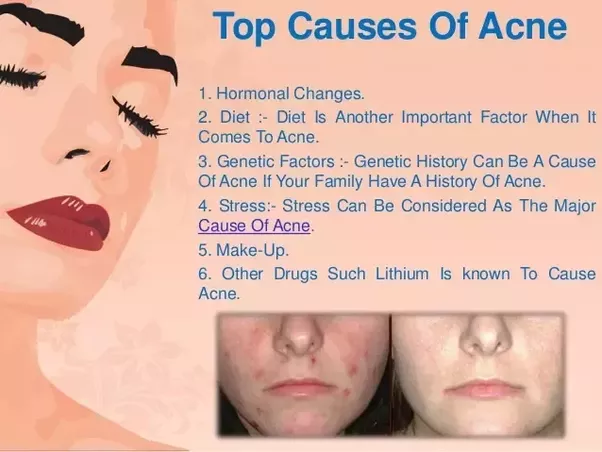 Does Eating Bad Food Cause Acne