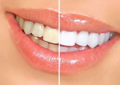 How Much Does Teeth Whitening Cost In India Quora