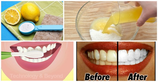 What Are Some Natural Ways To Whiten Your Teeth Quora