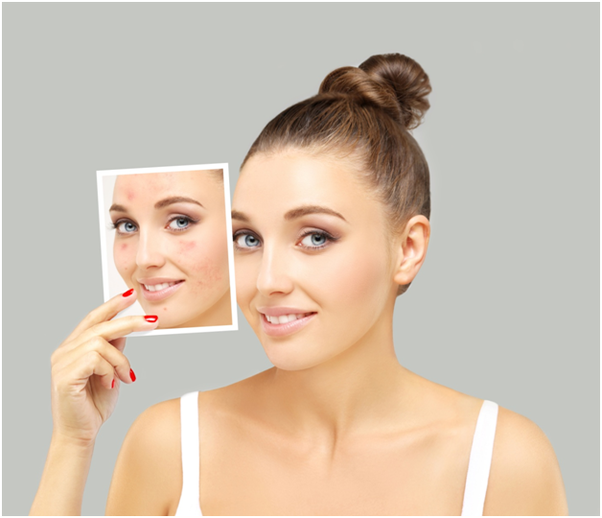 Can I expect good results from laser treatment for acne