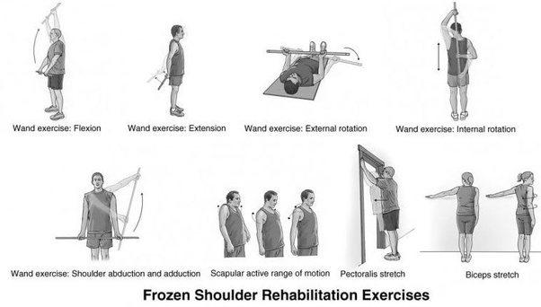 What Is Frozen Shoulder What Actually Happens Internally Quora