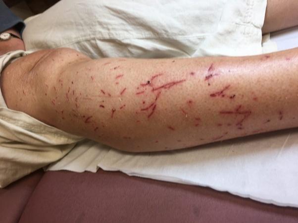 Cdc Cat Scratch Fever