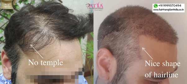 Is Hair Transplant A Success Or Failure Quora