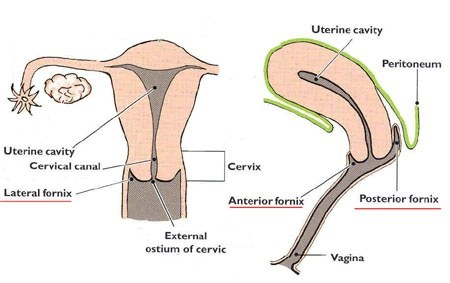 Where Do Mens Sperms Go In The Female Body During Sex When A Girl