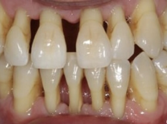 How To Get The Yellow Part Of My Tooth By Receding Gum Lines White