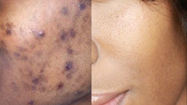 Who to get rid of dark spots on face and back by pigmentation? - Quora