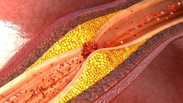 cuales son los niveles normales de colesterol en sangre