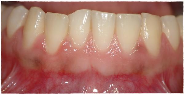 Is your gum disease over if the bleeding stops? - Quora