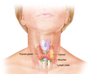What Are The Symptoms Of Thyroid Cancer Quora