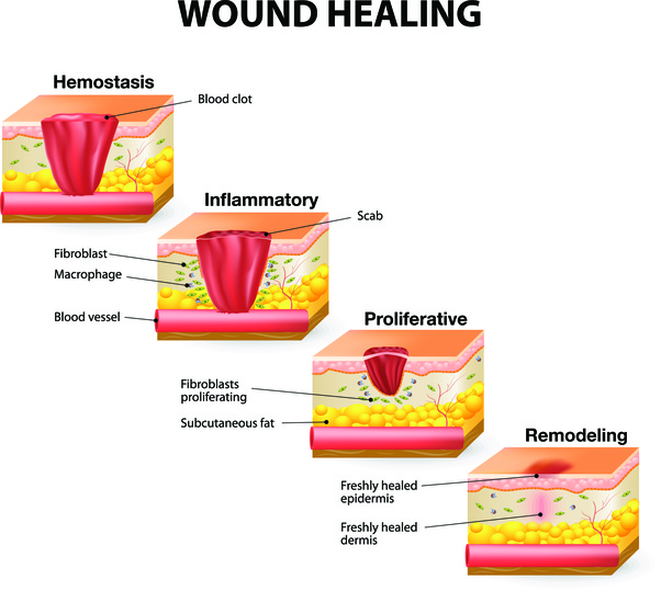 What are the stages of healing for surgical cuts? - Quora