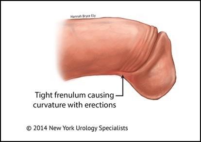 Operation frenulum Frenotomy