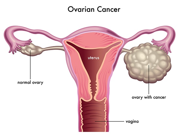 How is ovarian cancer usually detected, and what are the