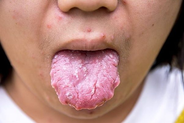 What Is The Best Medication For Managing Candidiasis Quora