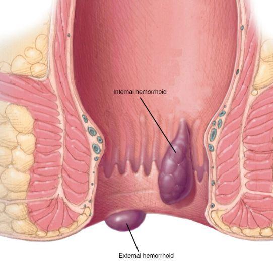 Ginger for anus hemorrhoids