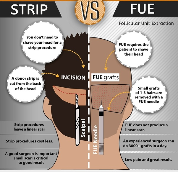 How Much Does A Hair Transplant Cost In Chennai Quora