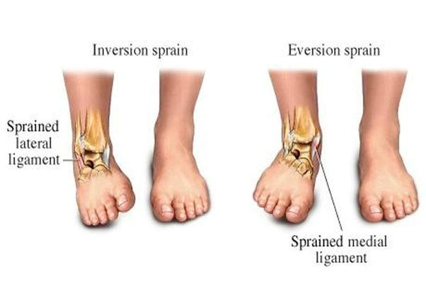 How do ankles work with bones, ligaments, and muscles? - Quora