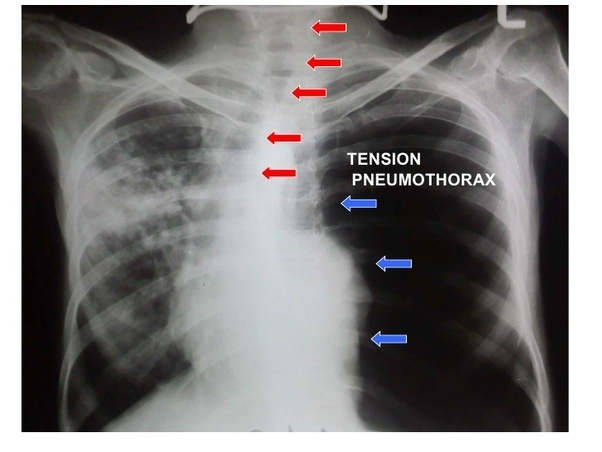 What Is The Difference Between Pneumothorax And Tension