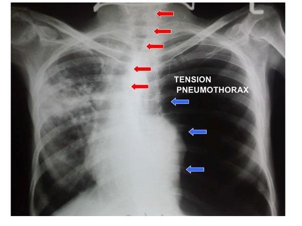 tension pneumothorax x ray - 602×452