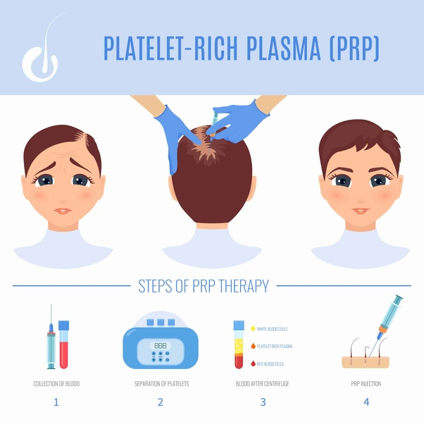 What is the actual cost of PRP (platelet Rich plasma