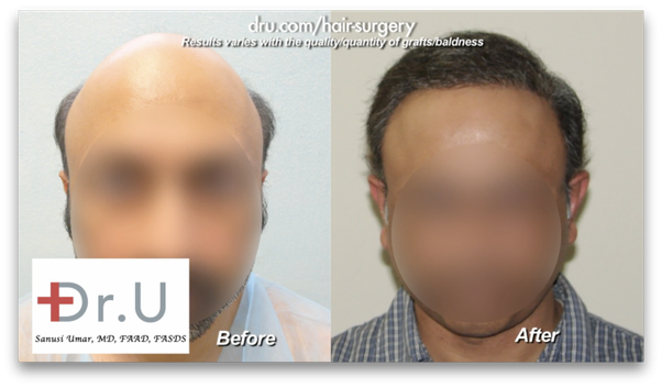 How Effective Is A Body Hair Transplant To A Head Solution Quora