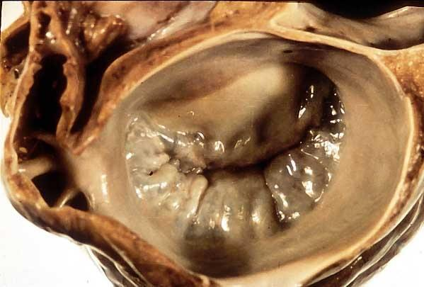 Why is bicuspid valve called mitral valve? - Quora