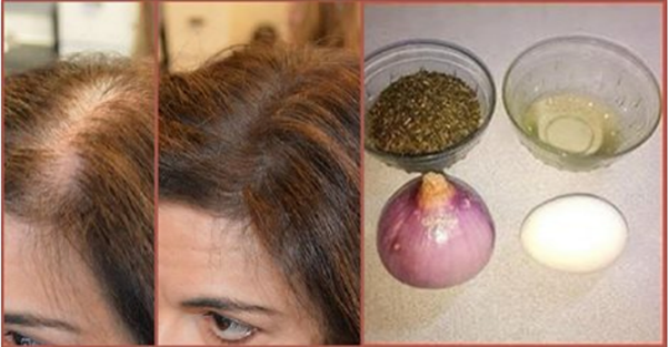 Does Onion And Egg Juice Promote Hair Regrowth Quora
