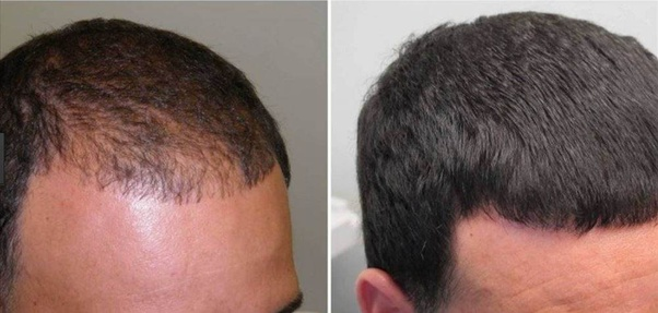 By using minoxidil, is new hair growth permanent or