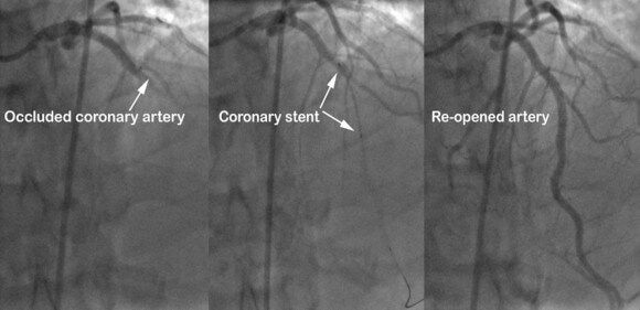 what coronary artery is called the widow maker  and why