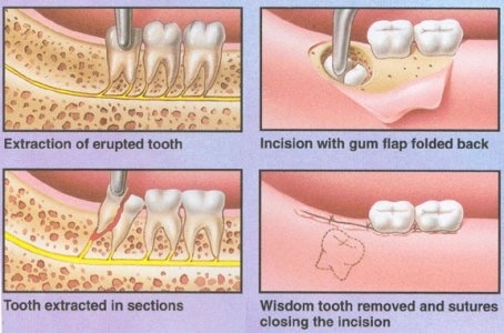 How painful is it to have your wisdom tooth extracted? - Quora