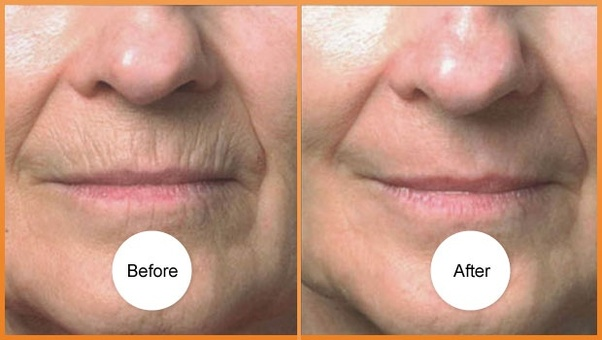 How long did it take you to see results from dermarolling ...