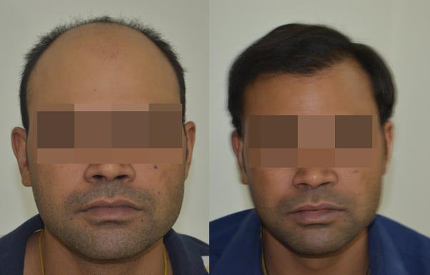 Best hair transplantation in bangalore dating
