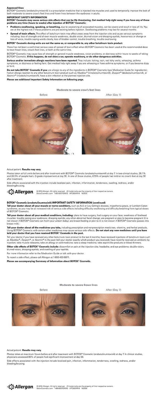 How does Botox work? - Quora