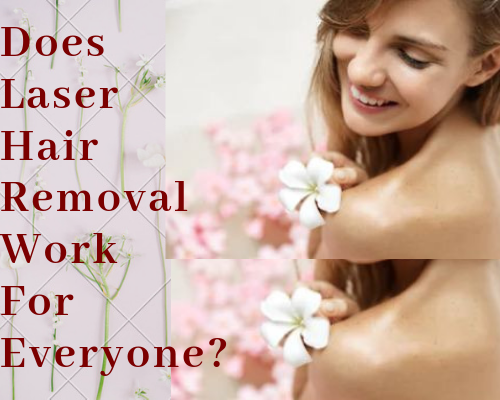 Laser Hair Reduction in delhi