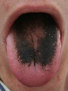 Black tongue from oral sex