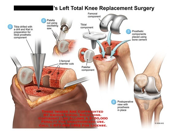 What is a knee replacement quora a bit more than just the surface is replaced from left total knee replacement surgery ccuart Choice Image