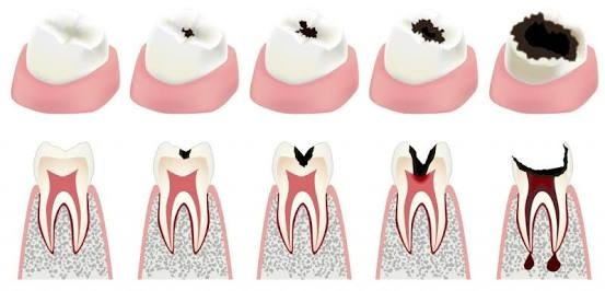 How much do tooth fillings hurt? - Quora