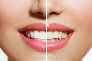 What Is The Best Way To Whiten Your Teeth Quora
