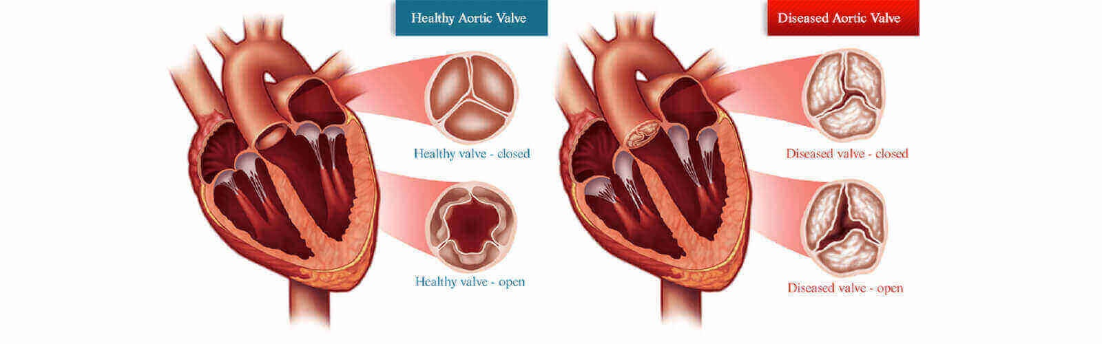 What Is Heart Valve Surgery Quora