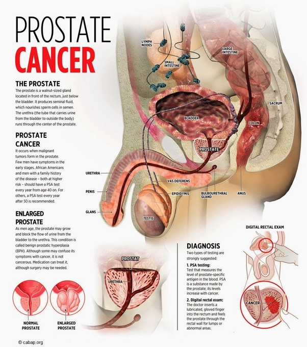 can prostate cancer kill you? quorain short \u2013 please never assume that this cancer is someting that should not be taken seriously because of the myth i mentioned above, as this assumption is