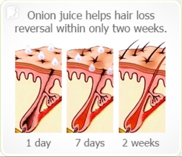 What Are The Benefits Of Onions For Hair Quora